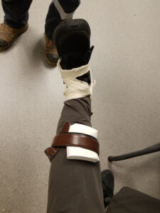 a leg bandaged for a wound with napkins and a belt and the ankle immobilized with a piece of wood and bandage
